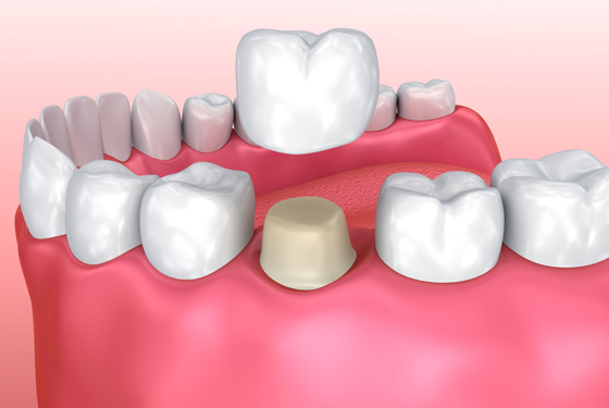 What Are Same Day Cerec Crowns