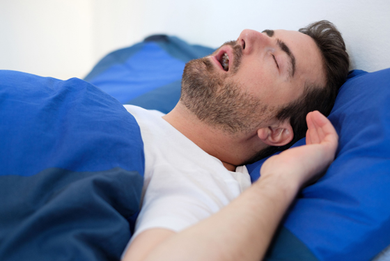 What Are Sleep Apnea Appliances