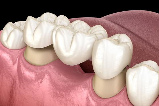 What Is A Dental Bridge