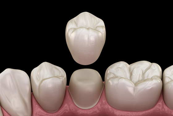 Why Would Same Day Cerec Crowns Be Needed