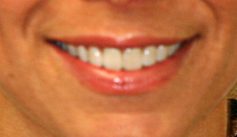 After Smile 1