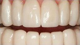 After Teeth